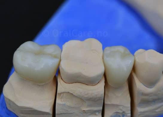 2 tannkroner på gipsmodell