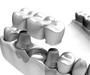 3-ledds tannbro kan ersatte en manglende tann