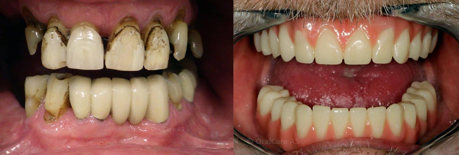 Før- og etterbilde av All on 4-behandling på 4 dager