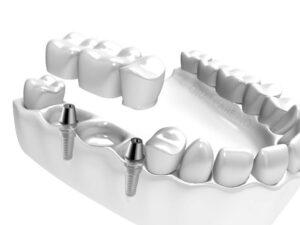 Tre manglende tenner kan erstattes med to implantat og bro