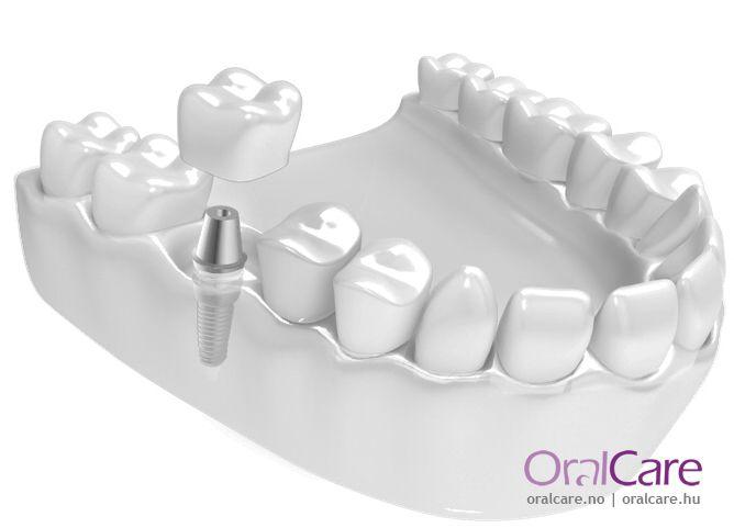 Erstatt 1 manglende tann med implantat og krone