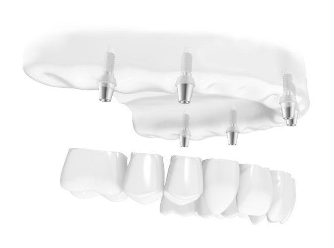 Erstatt flere manglende tenner med implantat