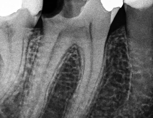 Eksempel på intraoralt røntgenbilde