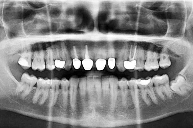OPG røntgen av voksen person