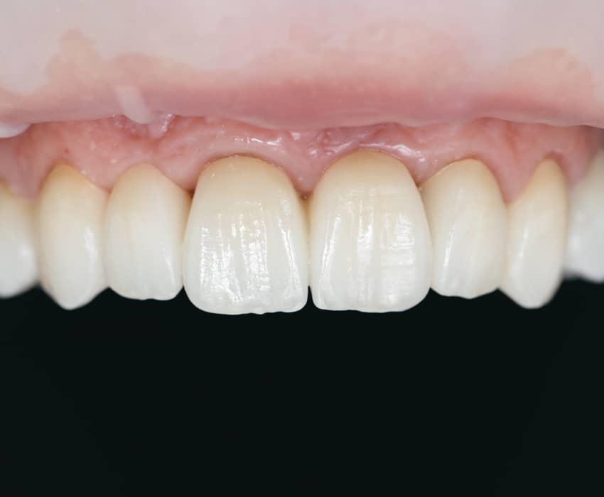 Erstatt flere manglende tenner med tannbro