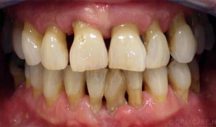 Foto av tenner der tannkjøtt har trukket seg tilbake grunnet bentap.